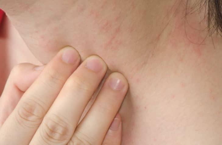 โรคลมพิษ (Hives) : อาการ สาเหตุ วิธีการรักษา
