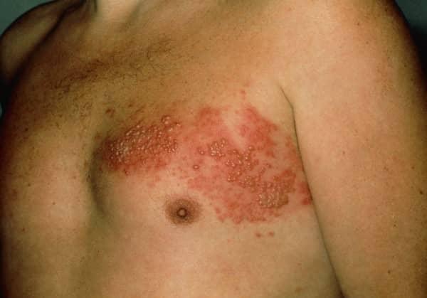 โรคงูสวัด (Shingles) : อาการ สาเหตุ การรักษา