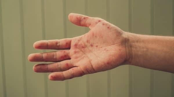 โรคมือเท้าปาก (HFMD)