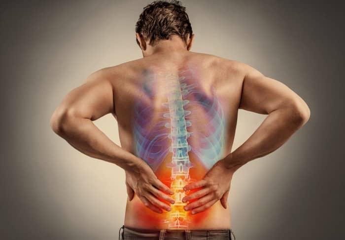 ปวดหลัง (Backache) : อาการ สาเหตุ การรักษา