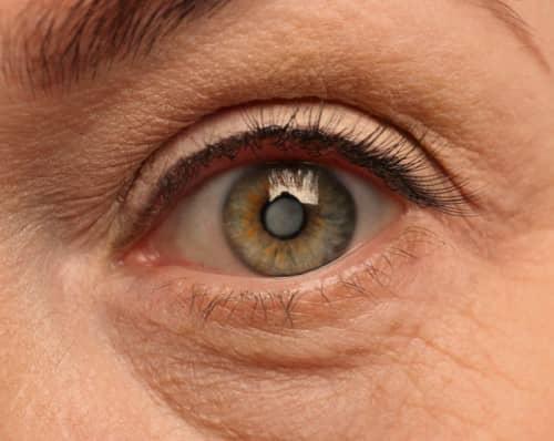 ต้อกระจก (Cataracts) : อาการ สาเหตุ วิธีการรักษา