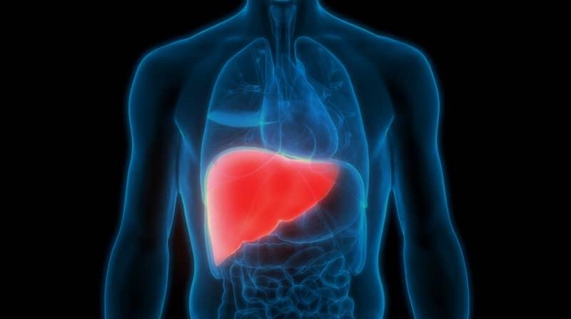โรคไขมันพอกตับ (Fatty liver)