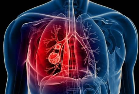 โรคมะเร็งปอด (Lung Cancer) : อาการ สาเหตุ การรักษา