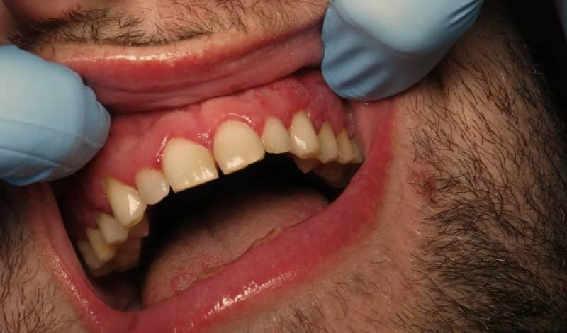 โรคเหงือกบวม (Swollen gums) : อาการ สาเหตุ การรักษา