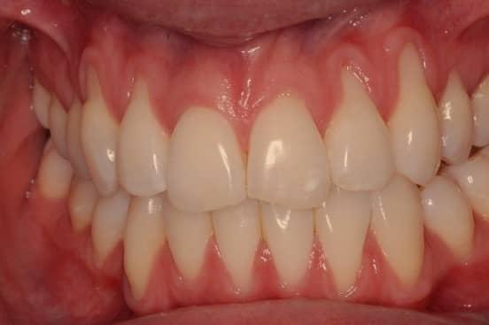 โรคเหงือกบวม (Swollen gums)