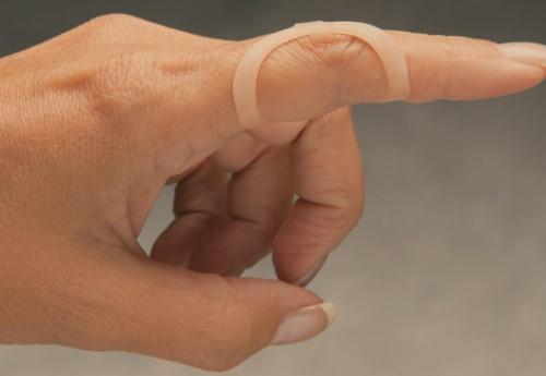 โรคนิ้วล็อก (Trigger Finger) : อาการ สาเหตุ การรักษา