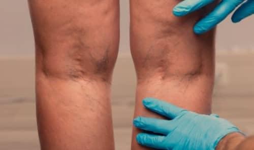 เส้นเลือดขอด (Varicose veins) :  อาการ สาเหตุ การรักษา