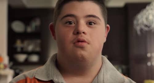 ดาวน์ซินโดรม (Down Syndrome) : อาการ สาเหตุ การรักษา