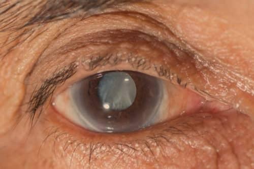 โรคต้อหิน (Glaucoma) : อาการ สาเหตุ การรักษา