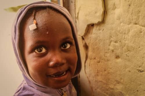 ภาวะขาดสารอาหาร (Malnutrition) : อาการ สาเหตุ การรักษา