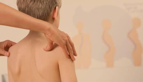 โรคกระดูกสันหลังคด (Scoliosis) : อาการ สาเหตุ การรักษา