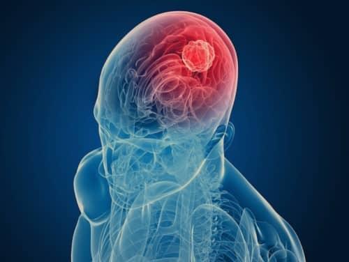 เนื้องอกในสมอง (Brain Tumor) : อาการ สาเหตุ การรักษา