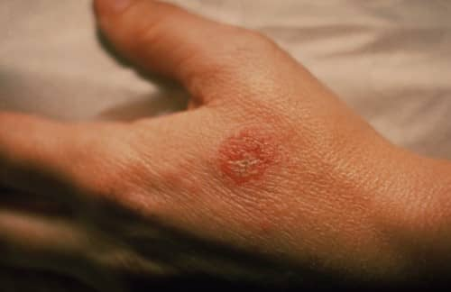 โรคภูมิเเพ้ผิวหนังอักเสบ (Eczema) : อาการ สาเหตุ การรักษา