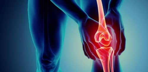 โรคข้อเข่าเสื่อม (Knee Osteroarthritis) อาการ สาเหตุ การรักษา