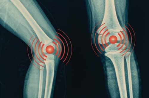 Knee Osteroarthritis