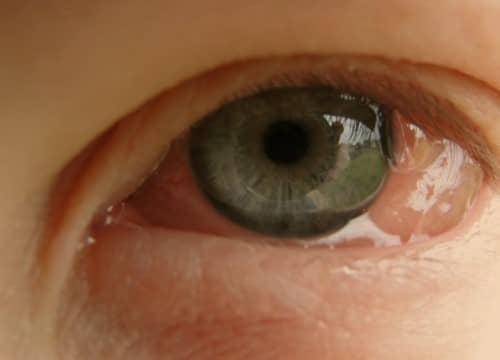 โรคภูมิเเพ้ขึ้นตา (Allergic Conjunctivitis) : สาเหตุ อาการ การรักษา