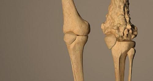 โรคมะเร็งกระดูก (Bone Cancer) : อาการ สาเหตุ การรักษา