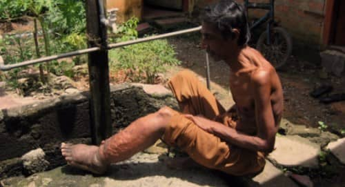โรคเท้าช้าง (Elephantiasis) : อาการ สาเหตุ การรักษา