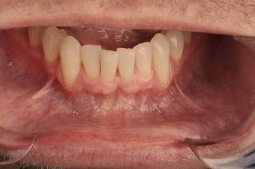 โรคมะเร็งช่องปาก (Oral Cancer) : อาการ สาเหตุ และการรักษา