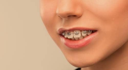 ฟันเหยิน (Overbites) : อาการ สาเหตุ การรักษา