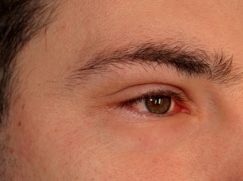 Swollen Eyes