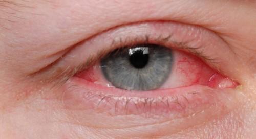 ตาบวม (Swollen Eyes) : อาการ สาเหตุ การรักษา