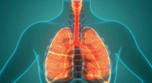 โรคถุงลมโป่งพอง (Emphysema) : อาการ สาเหตุ การรักษา