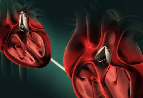 ลิ้นหัวใจรั่ว (Heart Valve) : อาการ สาเหตุ การรักษา