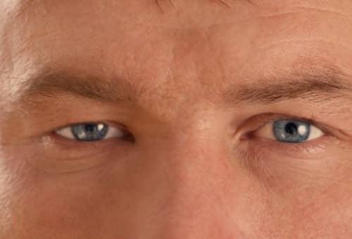 หนังตาตก (Ptosis) : อาการ สาเหตุ การรักษา