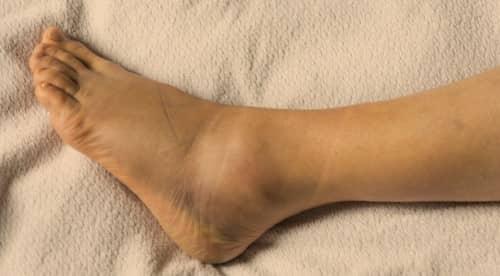 แพลง (Sprain) : อาการ สาเหตุ การรักษา