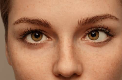 ตาเหล่ (Strabismus) : อาการ สาเหตุ การรักษา