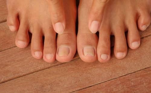 เชื้อราที่เท้า (Foot Fungus) : อาการ สาเหตุ การรักษา