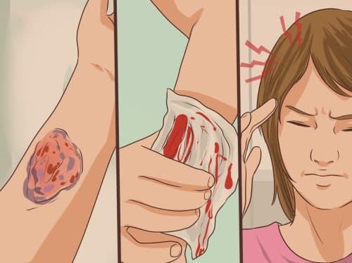 โรคฮีโมฟีเลีย (Hemophilia) : อาการ สาเหตุ และการรักษา