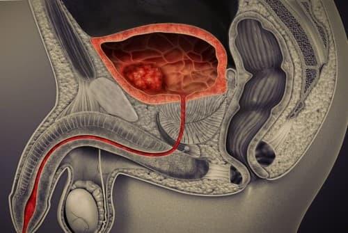 มะเร็งกระเพาะปัสสาวะ (Bladder cancer) : อาการ สาเหตุ การรักษา