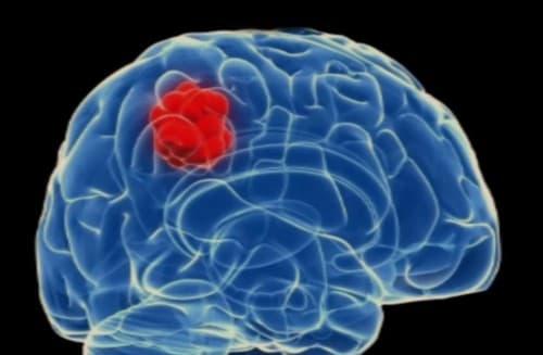 มะเร็งสมอง (Brain Cancer) : อาการ สาเหตุ การรักษา