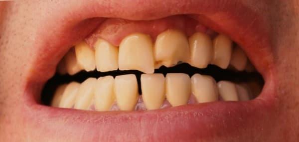 ฟันร้าว (Cracked Tooth) : อาการ สาเหตุ การรักษา