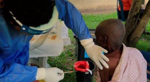 อีโบล่า (Ebola) : อาการ สาเหตุ การรักษา
