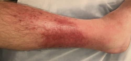 โรคไฟลามทุ่ง (Erysipelas) : อาการ สาเหตุ การรักษา