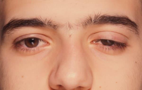 ภาวะเปลือกตาอักเสบ (Blepharitis) : อาการ สาเหตุ การรักษา