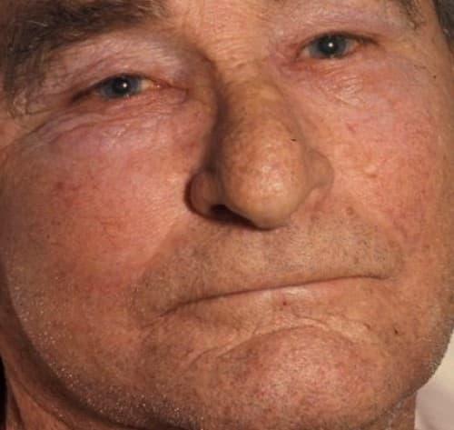 หน้าบวม (Facial swelling) : อาการ สาเหตุ การรักษา