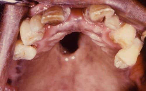 โรคหนองใน (Gonorrhea) : อาการ สาเหตุ การรักษา