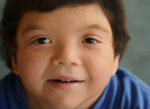 กลุ่มอาการไคลน์เฟลเตอร์ (Klinefelter Syndrome) : อาการ สาเหตุ การรักษา