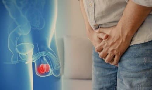 มะเร็งอัณฑะ (Testicular Cancer) : อาการ สาเหตุ การรักษา