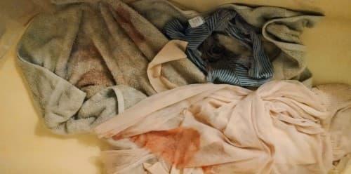 แท้งคุกคาม (Threatened Miscarriage) : อาการ สาเหตุ การรักษา