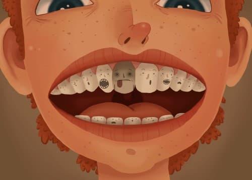 ฟันตาย (Dead Tooth) : อาการ สาเหตุ การรักษา