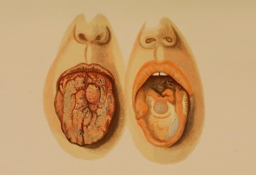 กามโรค (Venereal Disease) : อาการ สาเหตุ การรักษา