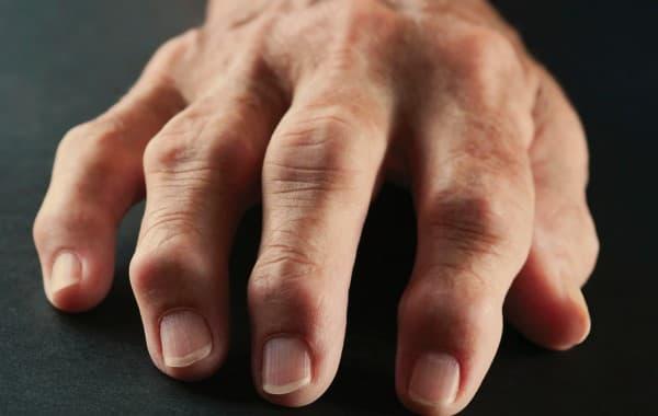 ข้ออักเสบ (Arthritis) : อาการ สาเหตุ การรักษา