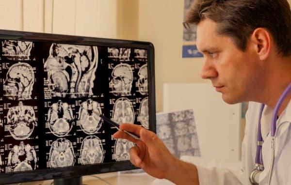 สมองบวม (Cerebral Edema) : อาการ สาเหตุ การรักษา