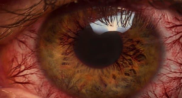 ตาล้า (Eye Strain) : อาการ สาเหตุ การรักษา