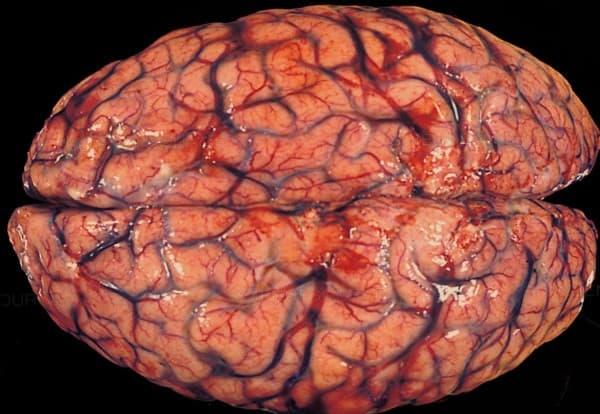 ภาวะเลือดคั่งในสมอง (Intracerebral Hemorrhage) : อาการ สาเหตุ การรักษา